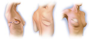 reconstruction-lambeau-musculo-cutane-grand-dorsal